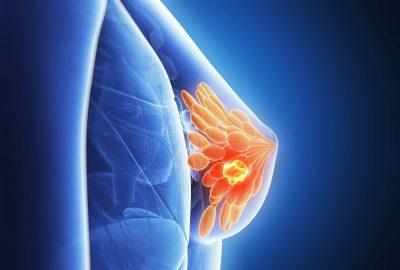 關注乳腺癌
